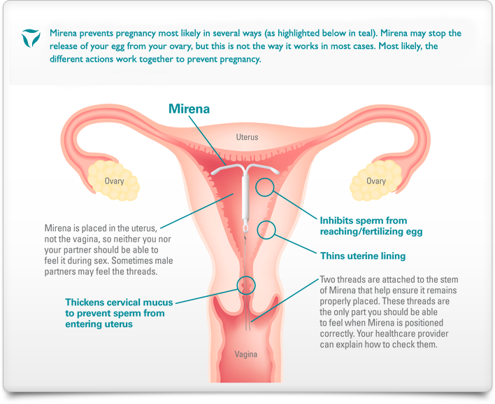 Graphic image of vagina, uterus, fallopian tubes and ovaries with Mirena IUD placement in uterus. Text says Mirena prevents pregnancy most likely in several ways (highlighted in teal in the graphic) Mirena may stop the release of your egg from your ovary, but this is not the way it works on most cases. Most likely the different actions work together to prevent pregnancy. Mirena is placed in the uterus not the vagina so neither you nor your partner should be able to feel it during sex. Sometimes male partners may feel the threads.  Mirena inhibits sperm from reaching/fertilizing egg; thins uterine lining; thickens cervical mucus to prevent sperm from entering uterus. Two threads are attached to the stem of Mirena that help insure that it remains properly placed. These threads are the only part you should be able to feel when Mirena is positioned correctly. Your Healthcare provider can explain how to check them.