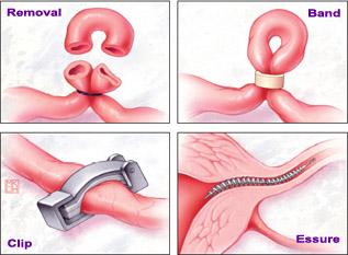 Tubal Ligation birth control methods