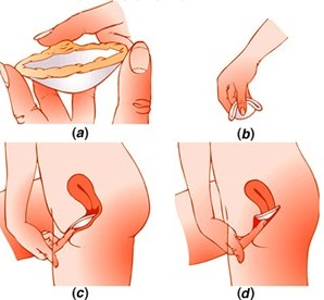 Graphic showing hoe to insert a diaphragm birth control