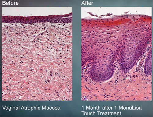 Before and after image of monalisa touch treatment for vulvar and vaginal atrophy