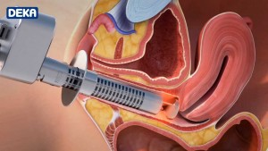 laser treatment for vaginal atrophy